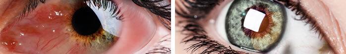 Cirurgias de estrabismo, plástica ocular, catarata e refrativa